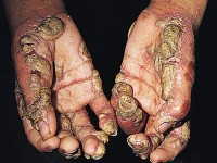 BORDER PATROL OFFICER CONTRACTS SCABIES FROM ILLEGAL ALIENS!